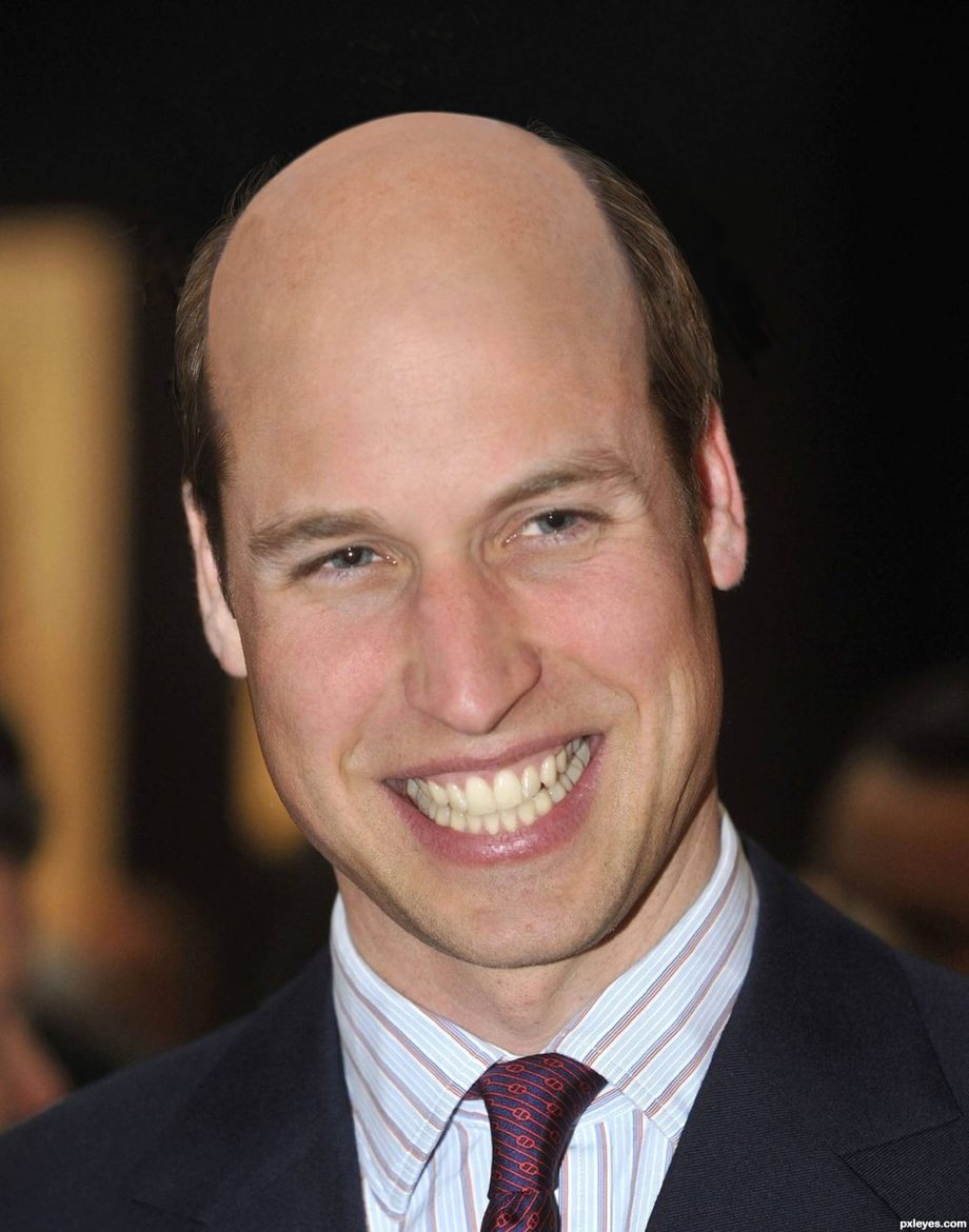 Your Complete Guide to Identifying Male Baldness Stages