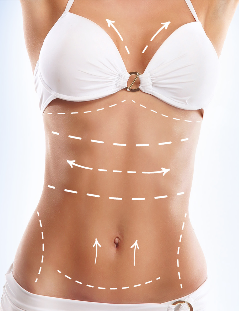 Why Do Patients Turn to Body Contouring Surgery?