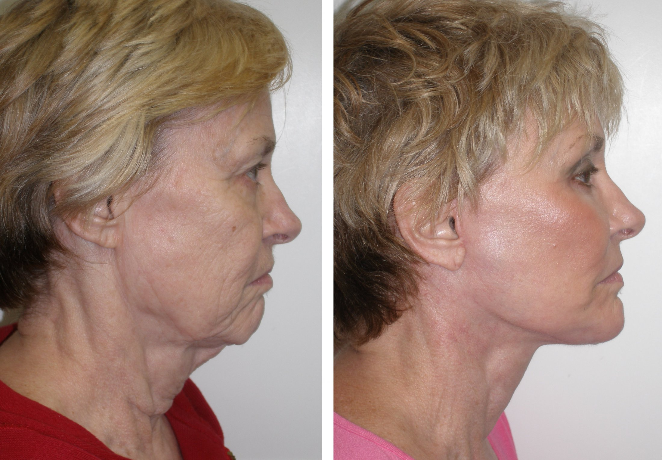 10 Natural Tips For A Perfect Chiseled Jawline