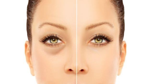 The Best Ways to Get Rid of Eye Bags