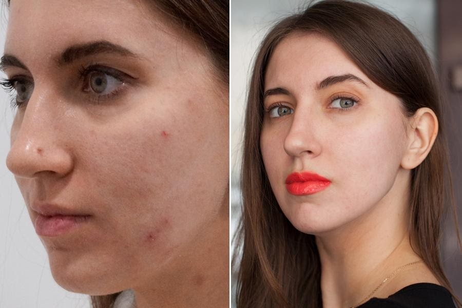 Will Picosure Clear Up Your Skin?